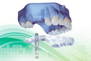 http://www.clinicagarciamonleon.com/wp-contingut/uploads/2015/11/implantes-straumann-320x214.jpg