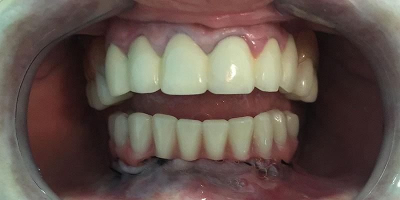 https://www.clinicagarciamonleon.com/wp-contingut/uploads/2016/11/all-on-4-3.jpg